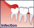infection iconography
