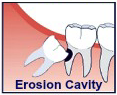 erosion cavity iconography