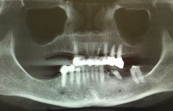 Extraction of failing teeth with 7 implants Before