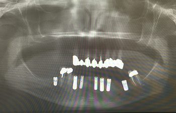 Extraction of failing teeth with 7 implants After