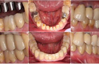 Sinus Bone graft with 4 Implants After
