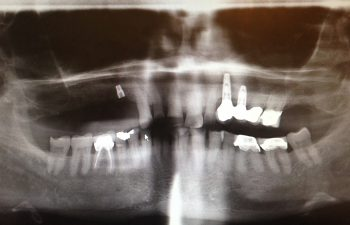 Sinus Bone graft with 4 Implants Before