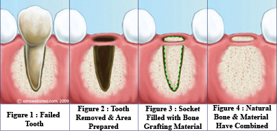 Diagram of the bone graft procedure