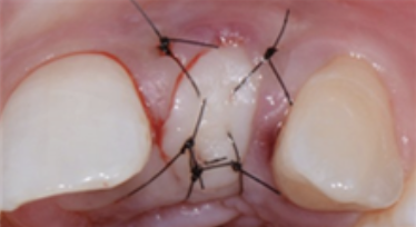 gum after the procedure