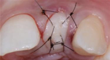 gum after the procedure