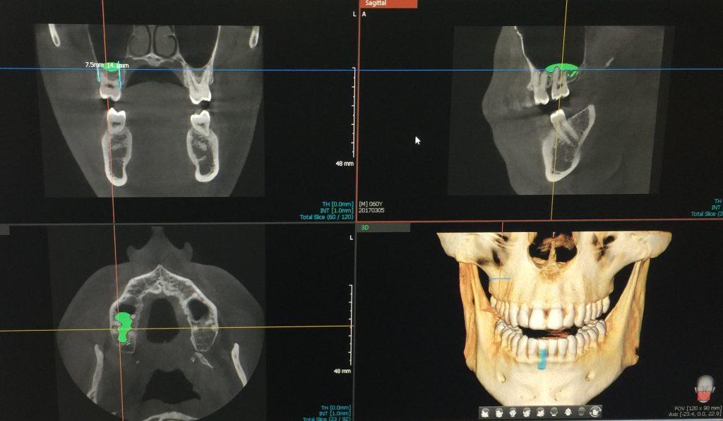 3-D CT Scans