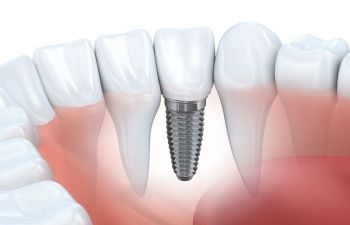 Dental Implants Torrance CA