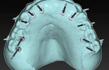 Digitally Planned Dental Implants at Torrance Oral Surgery and Dental Implant Center