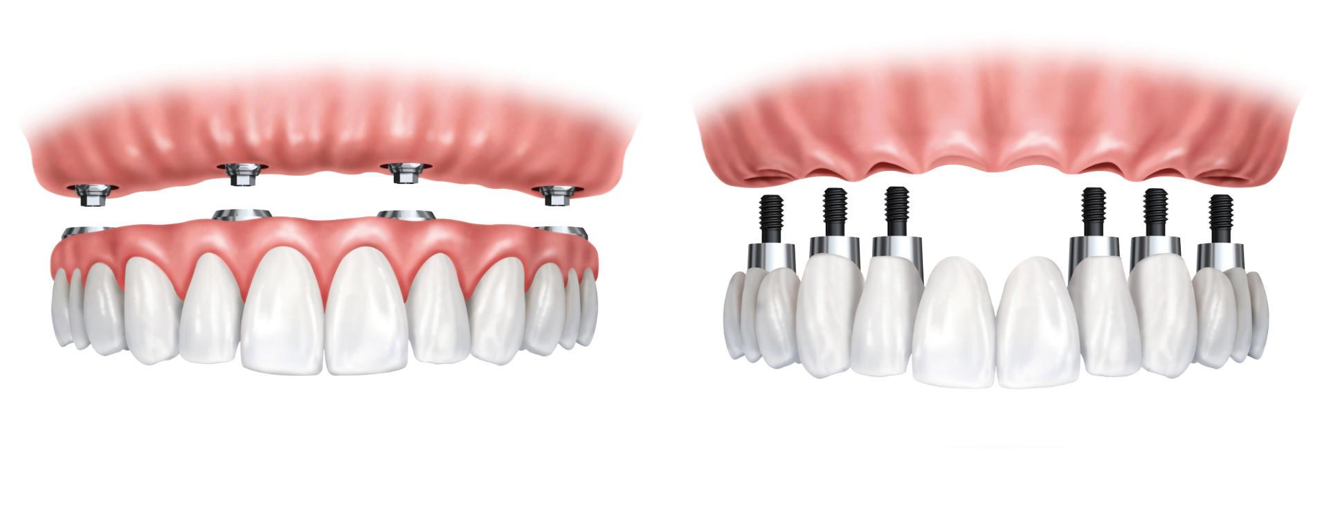Models of implants