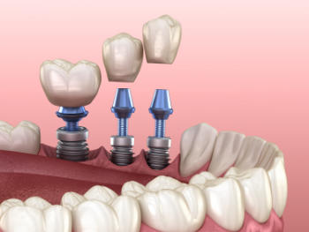 3 tooth crowns placement over 3 implants - concept. 3D illustration of human teeth and dentures